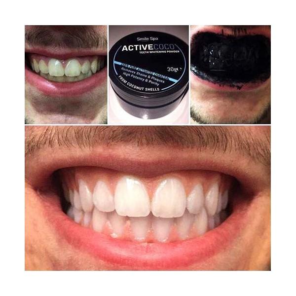 Poudre de blanchiment des dents au charbon actif avant/après